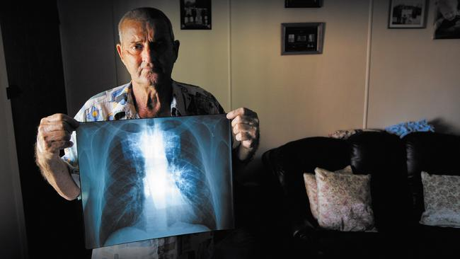 Percy Verrall was the first Australian diagnosed with black lung disease in 30 years.