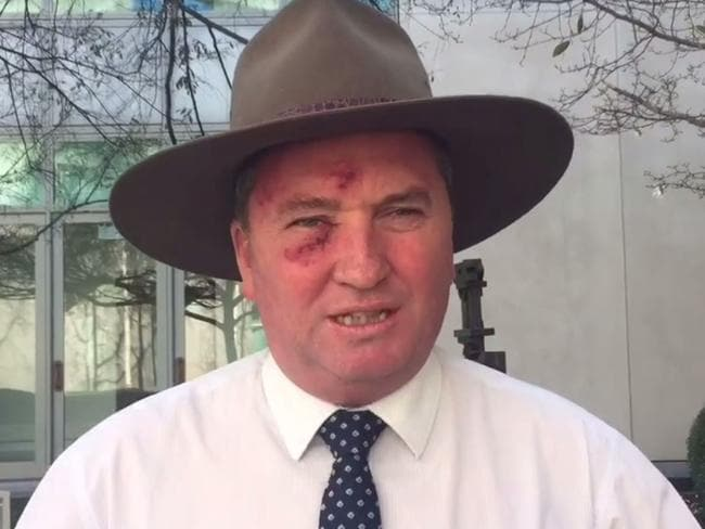 Barnaby Joyce after undergoing skin cancer treatment last year. Picture: Facebook