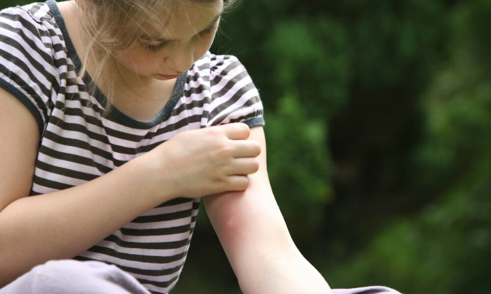 How to treat bites and stings this summer