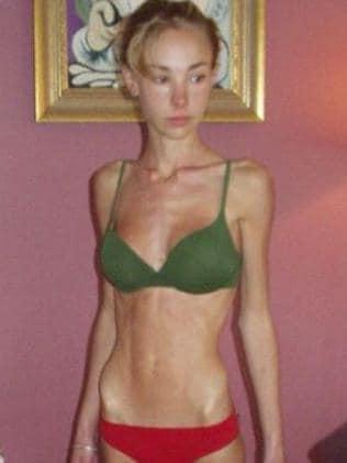 At her lightest, Hattie was just 26kg. Picture: Supplied.