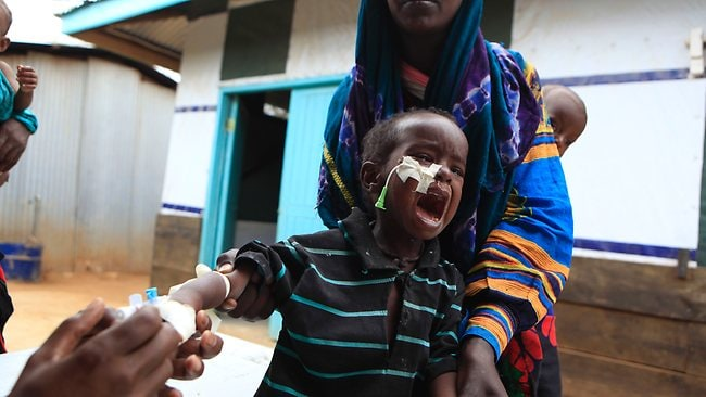 A Somali boy screams as a medical worker replaces his IV needle, for injecting medicine as part of his treatment for malnutrition, at a Doctors Without Borders hospital in Dagahaley Camp, outside Dadaab, Kenya. Picture: AP
