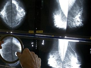 A radiologist uses a magnifying glass to check mammograms for breast cancer. Picture: AP