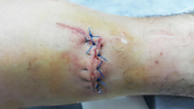 The stitched up wound before it began to open up.