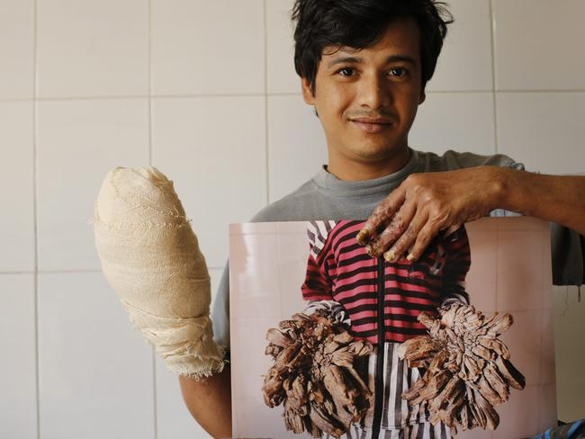 Bajandar has been under treatment for more than 10 months and so far had under went 16 operations on his hands and legs. Picture: EPA/Abir Abdullah