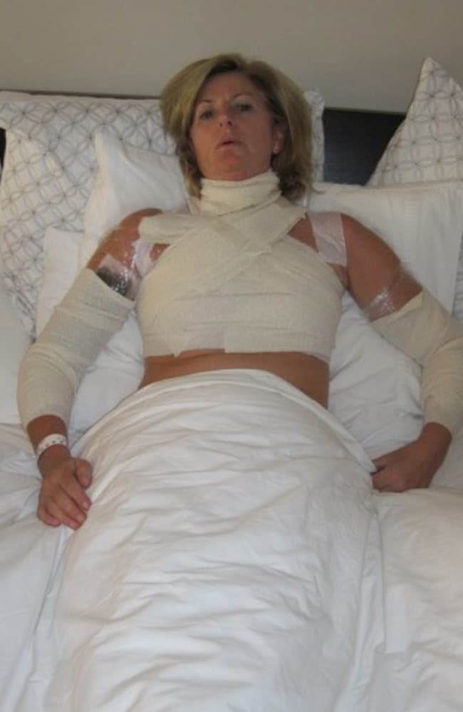 Mornington woman Adele Wishart in hospital after being injured by soup cooking in a Thermomix.
