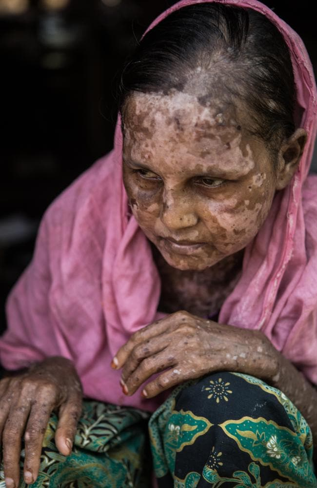 Shara Jahan, 40, sits for a portrait near her shelter in Kutupalong Refugee Camp, 29 September 2017. Picture: Amnesty International