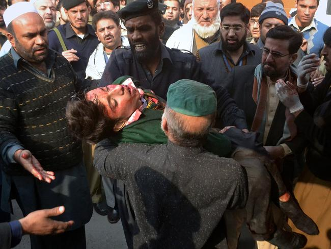 Tragic ... The wounded start arriving at a hospital for treatment. Picture: AP/Mohammad Sajjad