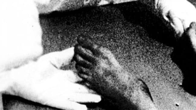 Footage from the documentary The Roswell Incident: Aliens Revealed purported to show a dead alien| with six toes.