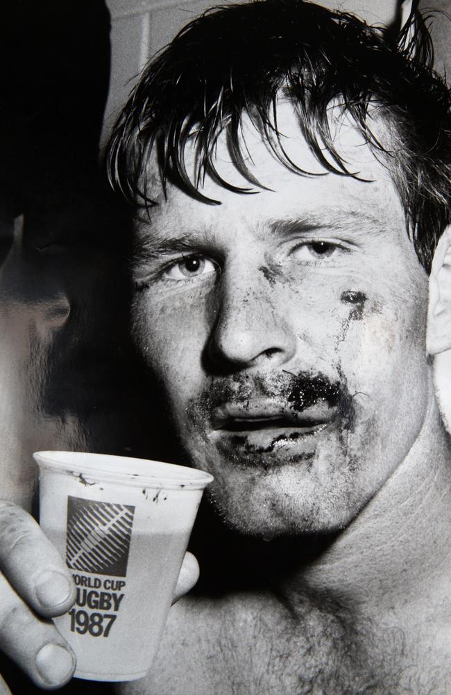 Sam Carter's father David showing off the wounds of his Brisbane Test debut in 1988.
