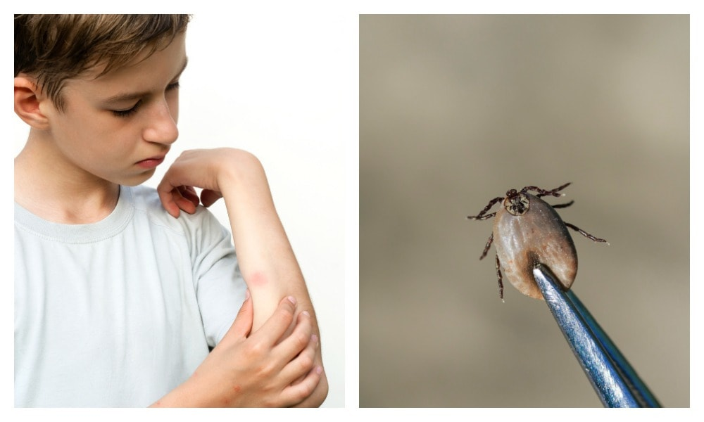 What to do if your child gets bitten by a tick this spring