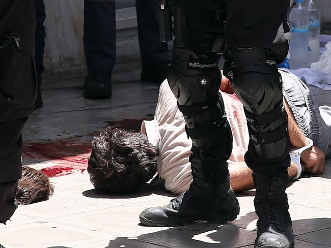 Bloody day ... police officers stand next to the seriously injured leading member of defunct militant outfit Revolutionary Struggle, Nikos Maziotis, after the shootout.