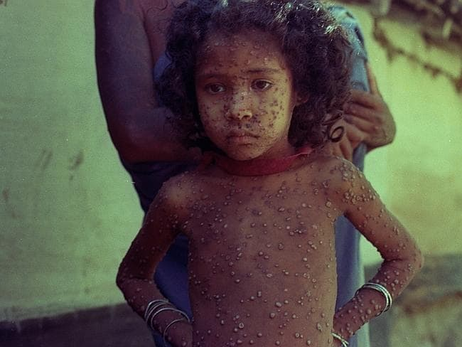 This file photo shows a small Indian child who has been infected with smallpox.