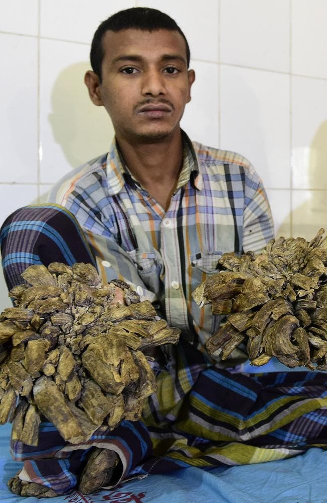 Abul Bajandar was dubbed the 'Tree Man' for the massive bark-like warts on his hands and feet. Picture: AFP/Munir uz Zaman