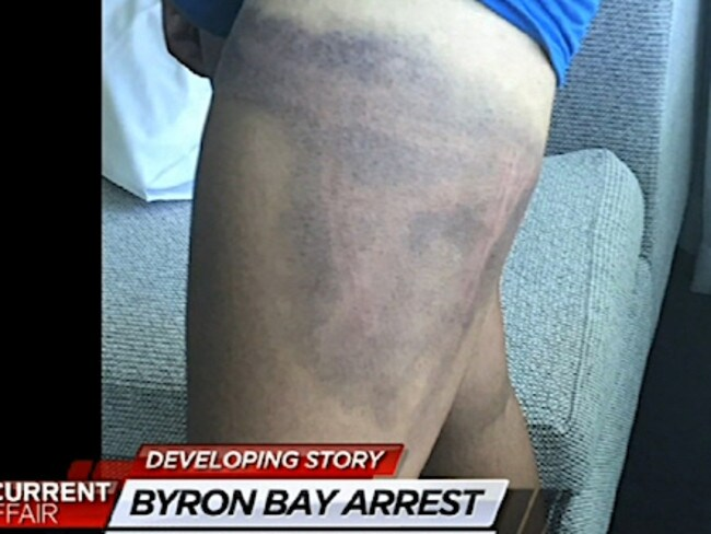 The injuries the schoolboy suffered. Picture: A Current Affair