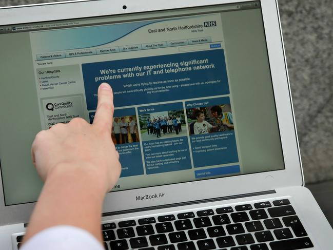 TOPSHOT - In this posed picture photograph, a woman points to the website of the NHS: East and North Hertfordshire notifying users of a problem in its network, in London on May 12, 2017.  Several British hospitals were hit by cyber attacks on Friday, the country's health service said, forcing some to divert ambulances to other clinics and urge people not to try to contact their doctors. / AFP PHOTO / Daniel LEAL-OLIVAS