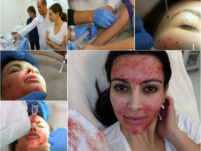Kim Kardashian gets a blood facial. Picture: E! News