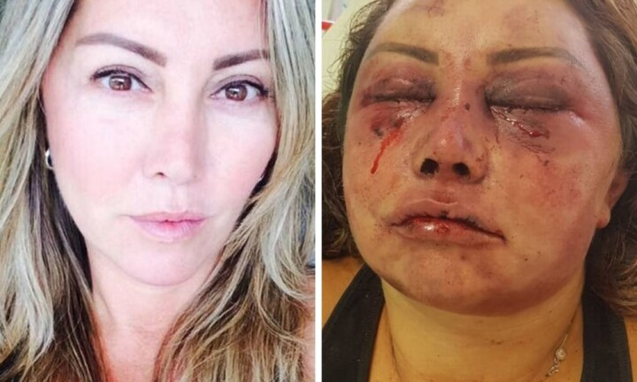 Single mum violently beaten while on first date with a man she met online