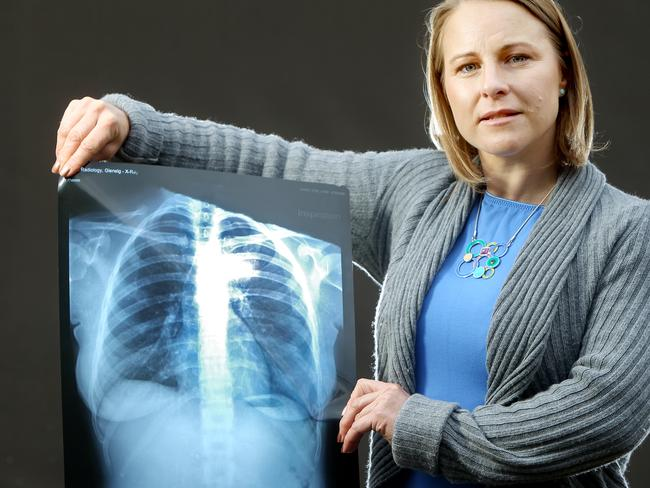 Clare Lindop with an X-ray of her chest after she fell on this year's Adelaide Cup Day. Picture: Calum Robertson