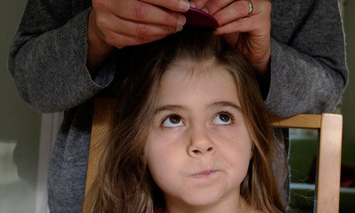 Top ways to get rid of head lice