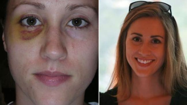Colbie Holderness was Rob Porter's first wife. She is shown at left with a black eye she says Mr Porter gave her. Picture: Supplied