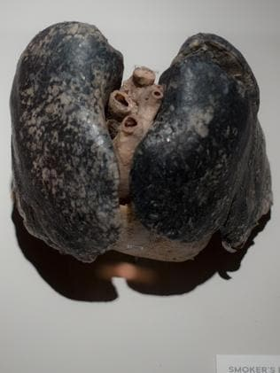 Real human organs will be on display at the exhibition.