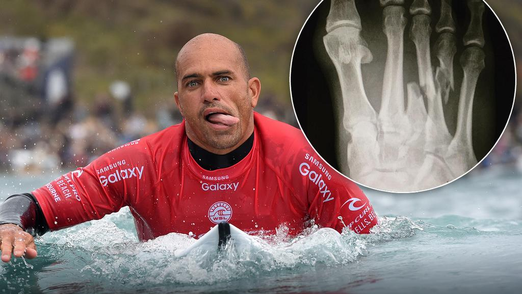 Surfing legend Kelly Slater suffered a horror foot break at J-Bay.