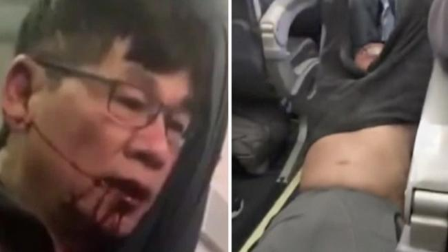 Shocking video showed Dr David Dao being dragged out of his seat and through the aisle of a United Airlines plane. Picture: AP