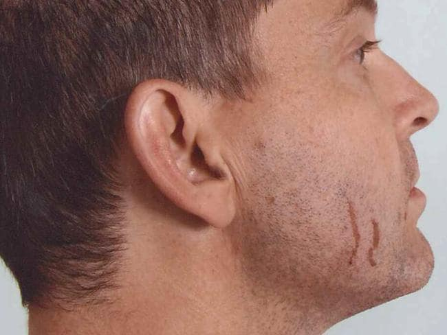 Gerard Baden-Clay told the court the scratches on his face were caused by an old razor