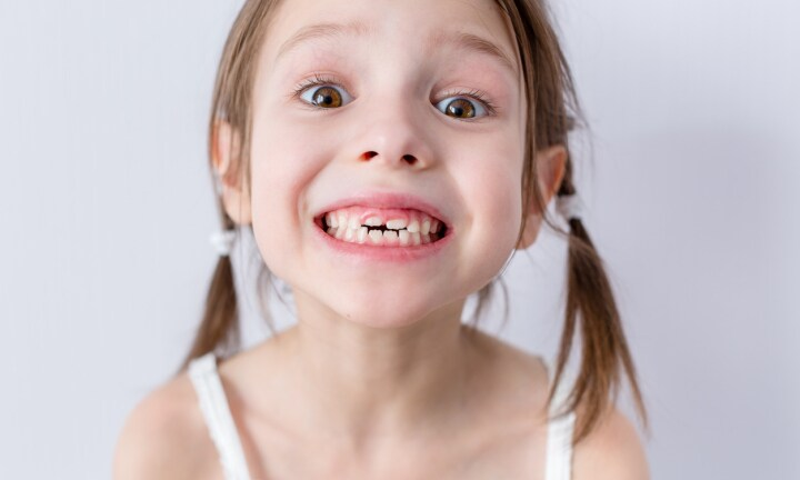 This is what causes crooked teeth in kids