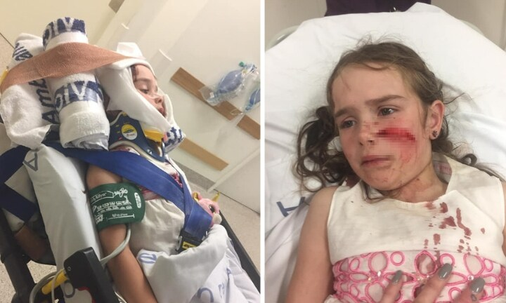 Mum's warning after little girl's face slashed by ceiling fan near bunk bed