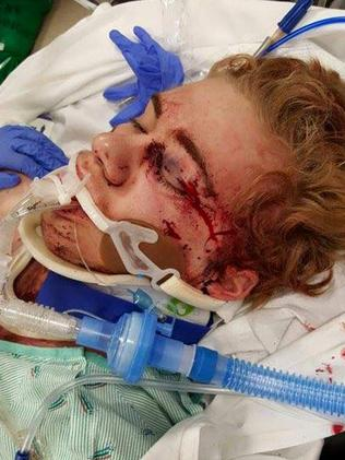 The impact of Skylar Fish's fall crushed his eye socket, cheekbone and caused bleeding on his brain that required immediate surgery. Picture: Facebook / Siemny Kim