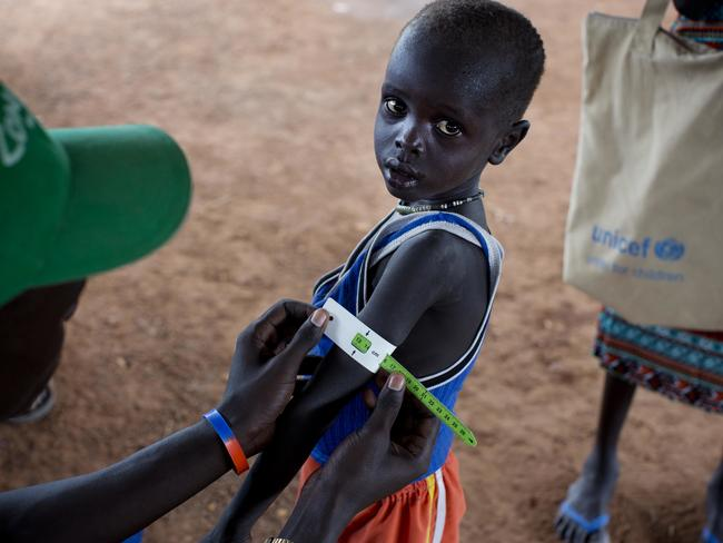 A boy has his arm measured to see if he is suffering from malnutrition during a nutritional assessment at an emergency medical facility supported by UNICEF in Kuach, South Sudan. Picture: Kate Holt/UNICEF via AP