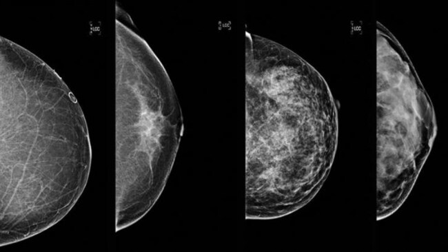 Source: Supplied. Breast cancer density on mammogram.