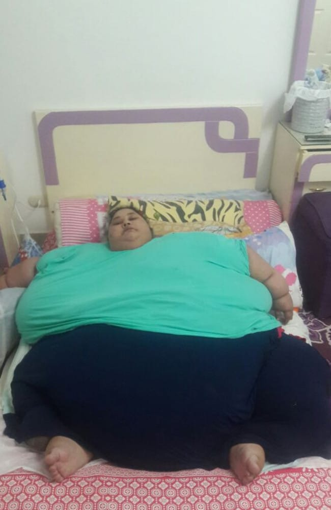 Eman Ahmed Abd El Aty, who weighed 500kgs before treatment, was trapped at home for 25 years. Picture: bitgiving.com/SaveEmanCause