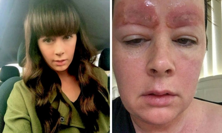 Melbourne mum faces $150k lawsuit over eyebrow tattoo infection
