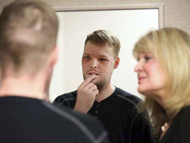 Face transplant patient Andy Sandness surveys himself in a mirror. Picture: Charlie Neibergall
