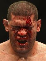 BRISBANE, AUSTRALIA - DECEMBER 07: Antonio 'Big Foot' Silva's face is full of blood during the UFC Brisbane bout between Mark Hunt and Antonio 'Big Foot' Silva of Brazil at the Brisbane Entertainment Centre on December 7, 2013 in Brisbane, Australia. (Photo by Bradley Kanaris/Getty Images)