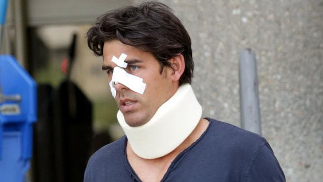 Thomas Drouet after his altercation with John Tomic. Picture: Ella Pellegrini