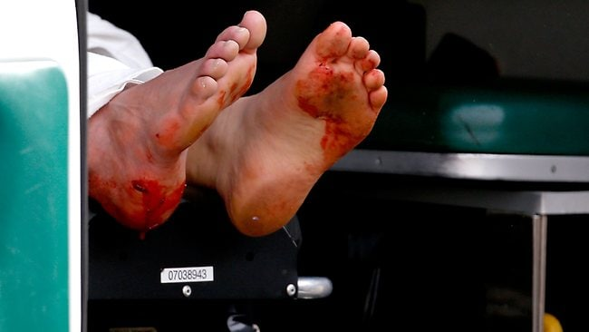 The blood-stained feet of a man hang from an ambulance outside a medical tent located near the finish of the Boston Marathon. (Photo by Jim Rogash/Getty Images)
