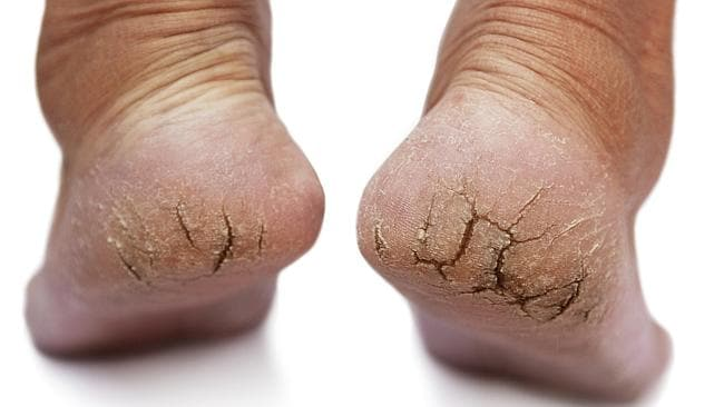 Gross feet need to be hidden away under socks and shoes. Picture: Thinkstock