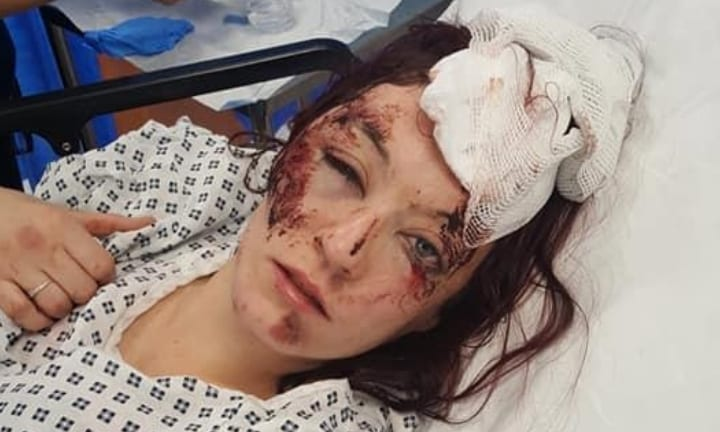 Mum was randomly attacked by mystery men while walking home alone at night