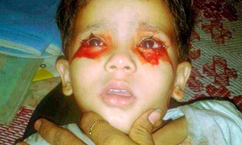 Toddler bleeds from eyes, mouth and nose daily and doctors ...