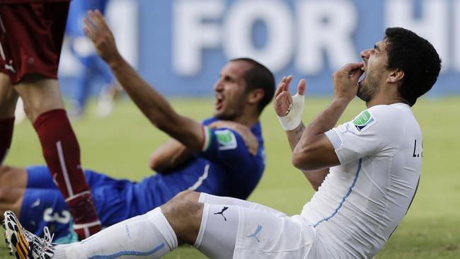 Suarez holds his teeth after biting Italy's Giorgio Chiellini's shoulder during the World Cup.