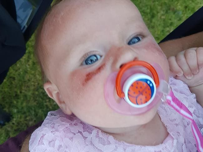 """Baby Chloe suffered a """"chemical burn"""" from using Banana Boat baby sunscreen lotion. Picture: Emma Lipson"""