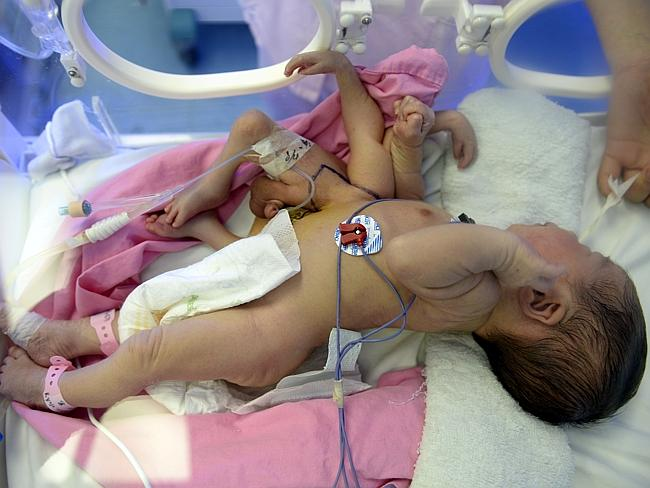 Surgery success ... the baby boy is reportedly in a stable condition after surgeons removed the extra limbs. Picture: Imaginechina/Corbis
