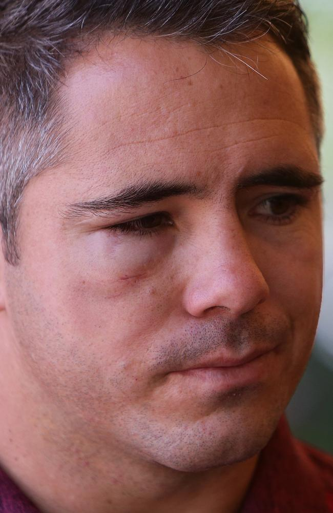 Corey Parker with a swollen face in Origin camp. Picture: Peter Wallis