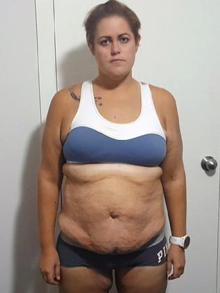 Elle pictured part way through her weight loss journey. Picture: Caters News