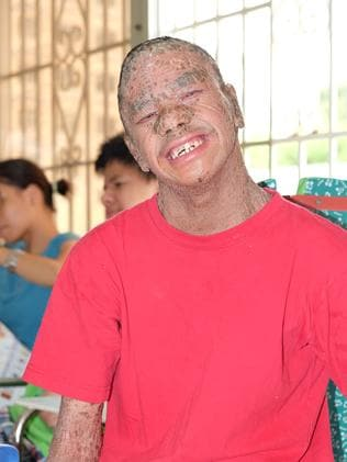 Nguyen Minh Anh, aged 21, born with ichthyosis (thought to be unrelated to Agent Orange) and mental illness (his scaly skin led him to be nicknamed Ca, the Vietnamese word for 'fish'). Photo: Ash Anand / NEWSMODO