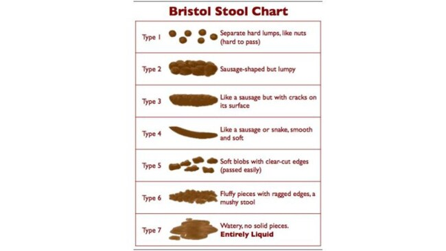 Photo: Bristol Stool Chart.
