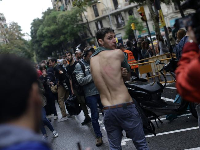 A man shows a bruise on his back allegedly caused by Spanish riot police after clashes near a school assigned to be a polling station by the Catalan government in Barcelona. Picture: AP